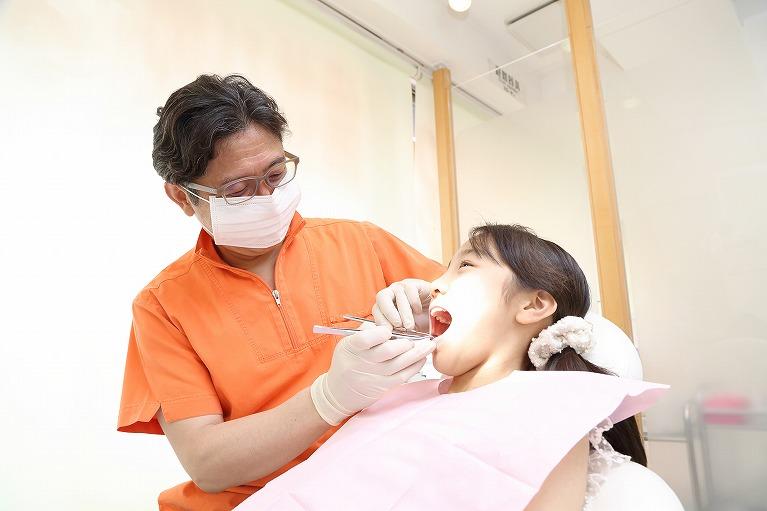 小児矯正歯科治療のメリット