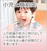 小児上顎前突