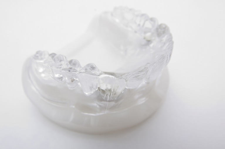 マウスピースによる矯正歯科治療